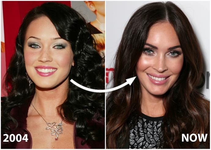 "Looking this drop-dead gorgeous hasn't come cheap for **Megan Fox**, who's reportedly spent a whopping $75,000-plus adding angles to her face.  ""It looks to me as though she's had a nose job and cheek fillers,"" Sydney-based surgeon Dr Sim Choroomi says of the mum-of-three, 30. ""Her skin also looks clearer and lighter – skin resurfacing is the likely culprit."""