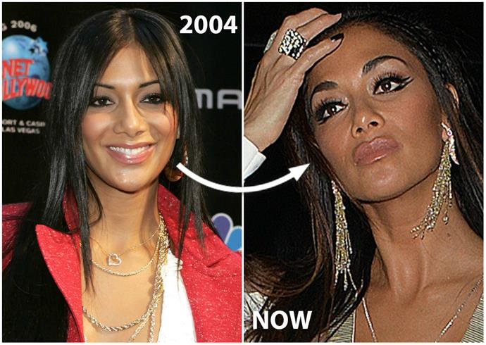 "While docs believe **Nicole Nicole Scherzinger**'s pumped her face full of lip fillers and Botox since she burst onto the scene as a fresh-faced Pussycat Doll, the singer firmly denies ever going under the knife.  ""No I haven't [had work done],"" Nic, 38, says. ""For me it's more about taking care of yourself from the inside out. I think health is really important."""