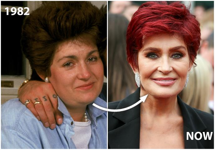 "On top of boasting about her ""designer vagina"" – TMI! – Mrs O jokes that she's ""on face [number] three and counting"".  But while **Sharon Osbourne**, 64, is happy with her work, Dr Choroomi reckons she missed the less-is-more memo.  ""She has a surprised look with her brow, which may be from having a brow lift at the same time as her face lift,"" he tells NW. ""Her cheeks and forehead also show signs of fillers."""