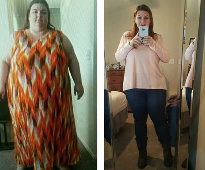 Before undergoing gastric bypass surgery, Reddit user tinker0025's life was at risk due to her weight. Now 113kg lighter, she credits the surgery with saving her life. Not to mention, many folks think she looks years younger too!