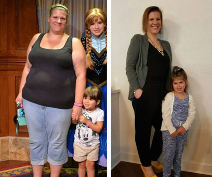 "At nearly 135 pounds, Melanie said this was her least favorite picture. After getting a gastric sleeve surgery and eating healthier, Melanie, now 40 kilos lighter, is finally able to enjoy being active with her young daughter.  **Words: Linnea Zielinski ** [*Via: Woman's World*](http://www.womansworld.com/posts/before-and-after-weight-loss-89991/photos/alisha-after-133388#photo-anchor|target=""_blank""