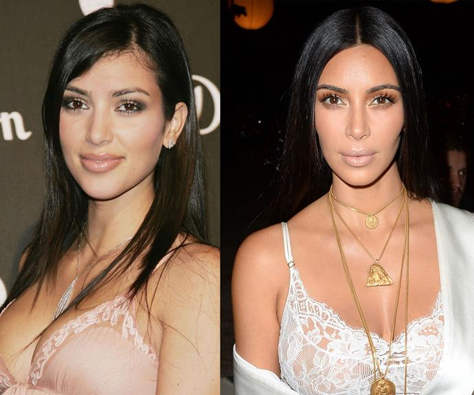 """Kim Kardashian explained on her [website](https://www.kimkardashianwest.com/behind-the-scenes/788-kim-kardashian-baby-hairs/