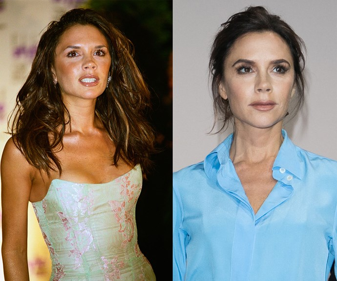 "Victoria Beckham had breast augmentation surgery in 1999 after giving birth to her first son, Brooklyn, but told *Allure* in 2014: ""I don't have them anymore [...] They got removed."" Her once DDs are now a B."