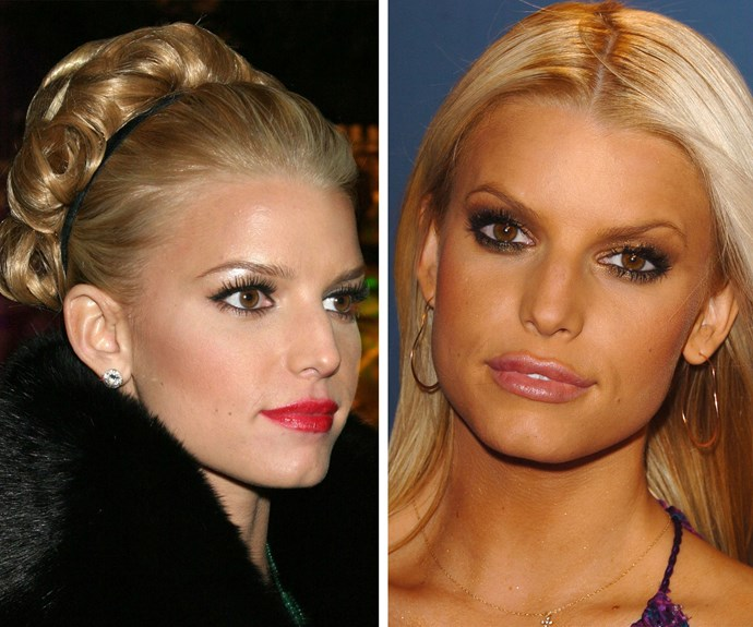 "After admitting to lip injections, Jessica Simpson told *Glamour* magazine in 2006, ""[The injections] went away in, like, four months, my lips are back to what they were. Thank God! It looked fake to me. I didn't like that."""