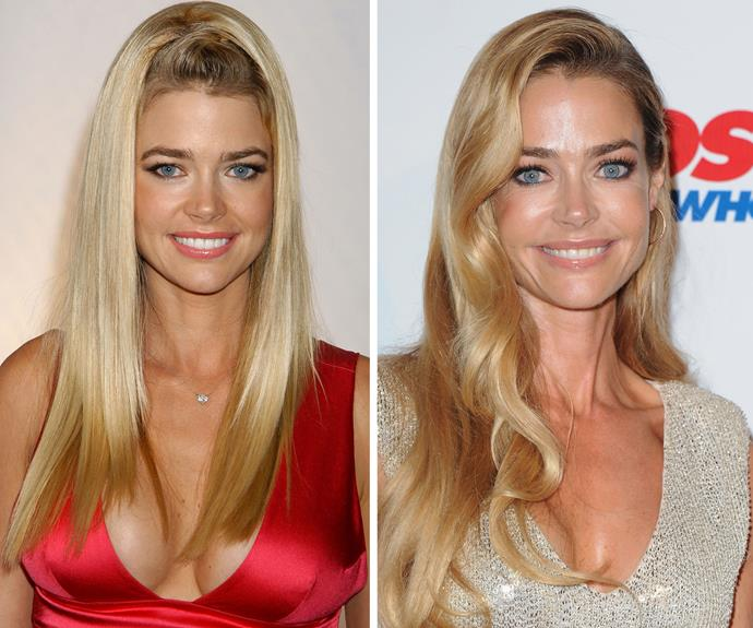 "In 1990, when Denise Richards was just 19, when she underwent rushed surgery for breast implants but the doctor gave her ""bigger implants than what I asked for,"" she told *Us Weekly* in July 2011. In 1998 Denise underwent corrective surgery, but still had bigger implants than she expected."