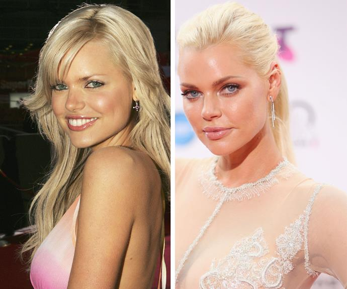 "Sophie Monk told *Who* magazine in 2011 that she's had lip fillers too, but wasn't happy with the results. ""Half of my lip was removed with the cyst, and I was advised to get filler in my top lip to help balance it out,"" Sophie said, ""I should have said no to the filler in the first place but I trusted the doctor."""