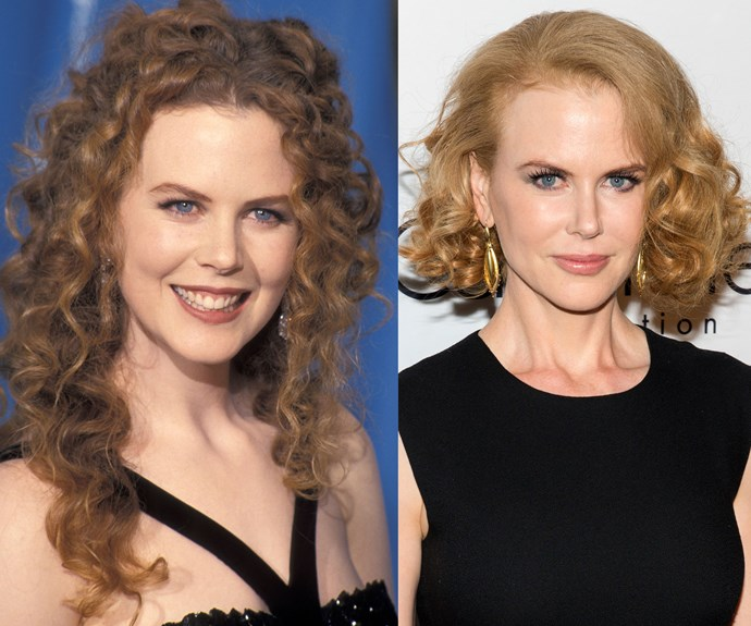"Nicole Kidman joked to Italian newspaper *La Repubblica* in 2013, ""No surgery for me; I did try Botox, unfortunately, but I got out of it and now I can finally move my face again."""