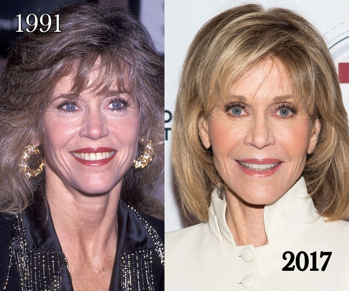"""I did have plastic surgery,"" said Jane Fonda to *W Magazine*, who had cosmetic procedures on her neck, chin and surgery to remove the bags under her eyes. ""I'm not proud of the fact that I've had it. But I grew up so defined by my looks. I was taught to think that if I wanted to be loved, I had to be thin and pretty. That leads to a lot of trouble."""