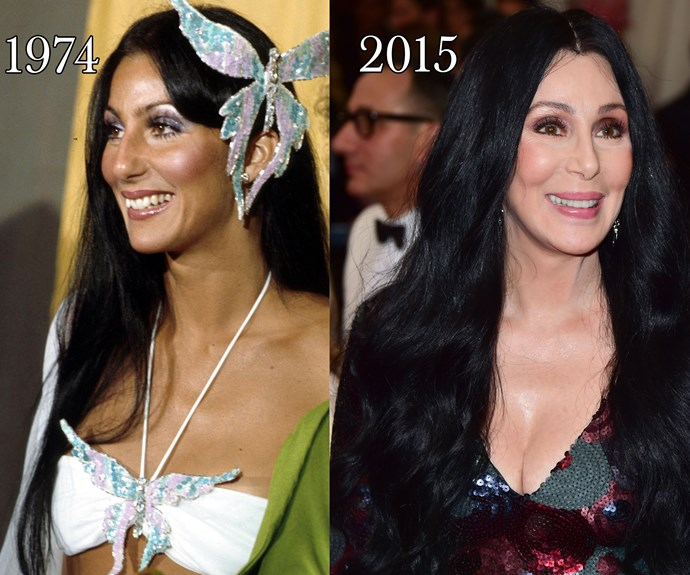 "Cher told *People* magazine in 90s, ""I've had my breasts done, but my breast operations were a nightmare. They were really botched in every way. If anything, they were worse after than before."""