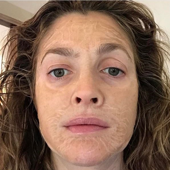 "It possibly looks more frightening than it actually is, but Drew Barrymore swears by the [Hanacure Effect](https://www.instagram.com/hanacureeffect/?hl=en|target=""_blank""