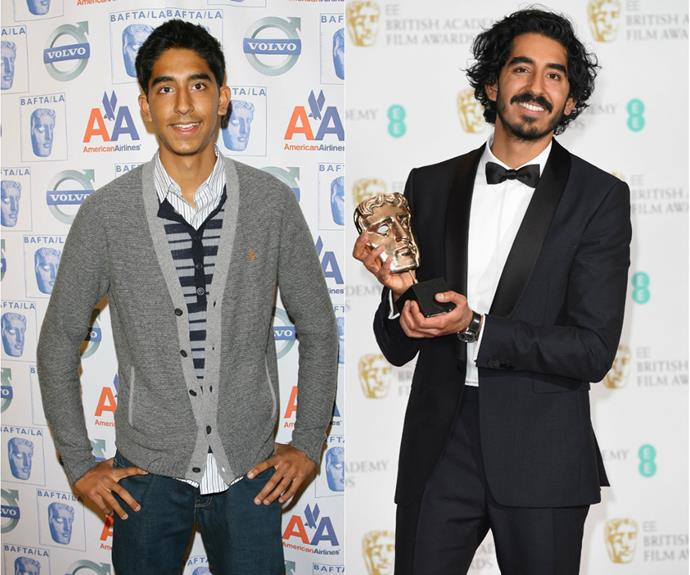 Would you believe Dev Patel once rocked the red carpet in a cardigan? This 2009 look is a far cry from the suave star we're now used to seeing.