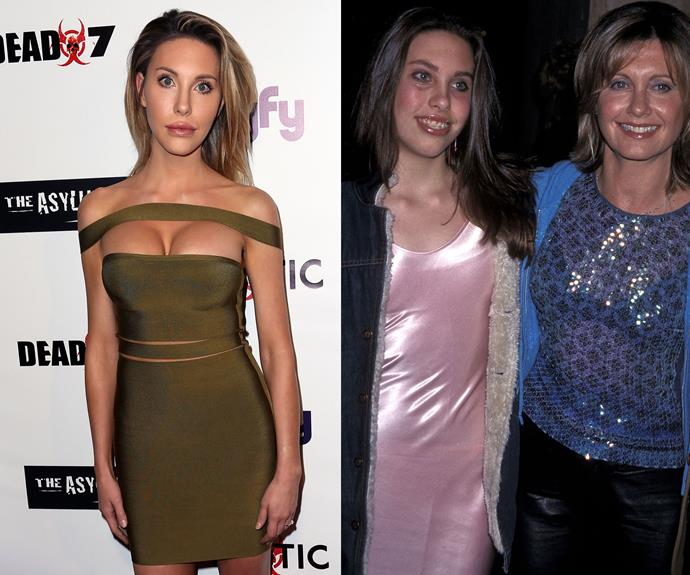 """Olivia Newton-John's daughter [Chloe Lattanzi](http://www.nowtolove.com.au/celebrity/celeb-news/olivia-newton-johns-daughter-chloe-lattanzi-is-unrecognisable-23929) reportedly spent nearly $550,000 on Botox, fillers and surgery but reveals to *Woman's Day* """"not only did the lip implants look ridiculous, the first boob op I had in Australia when I was 18, left me looking mutilated."""" Chloe went on to say """"now I'm a 32DD and I love my body and love showing my new boobs off. Mum supported my surgery decisions because she knew how unhappy I was before."""""""
