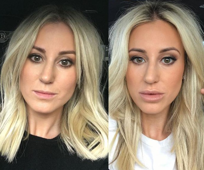 "Roxy Jacenko told Mia Freeman during her podcast *No Filter* that when she re-watched her *60 Minutes* interview she thought: ""Wow, maybe ease off that [lip filler] I may have overdone it."" Roxy went on to say ""they have since gone down, they have deflated. I haven't had them done for six months because there was so much in them."""