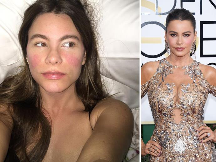 "Sick in bed with a rising temperature, [*Modern Family's*](http://www.nowtolove.com.au/news/real-life/modern-family-real-life-twins-we-hated-being-lily-31159) Sofia Vergara snapped this fresh-faced selfie and, despite fighting off a cold, still looks incredible (and cute!). ""Hm… I just realised that 102 fever gives u the perfect shades of pink. I need this colors,"" she wrote on Instagram, CCing in cosmetics giant Covergirl. Hopefully they listen because we'd buy this shade of blush in a heartbeat."