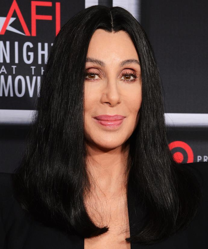 """Cher denies she's undergone lip injections, instead crediting orthodontic work for giving her """"more of a mouth""""."""