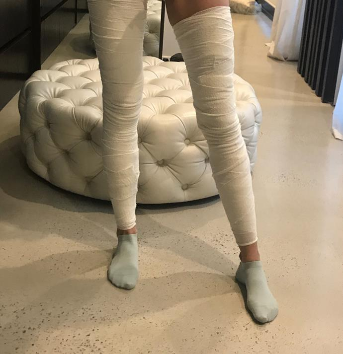 "Bec's bandaged legs after a Saturday night spent having her ""spider veins"" injected."