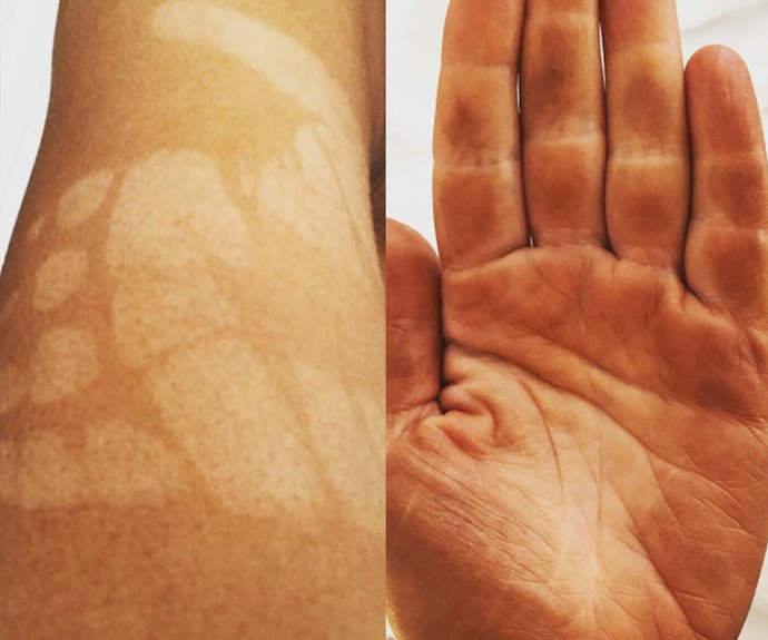 "[Carrie Bickmore](https://www.nowtolove.com.au/tags/carrie-bickmore|target=""_blank"") is not alone in her recent spray tan fail. The *Project* host shared this snap, admitting: ""Got a spray tan before my holiday and fell asleep with my hand on my arm!!"""