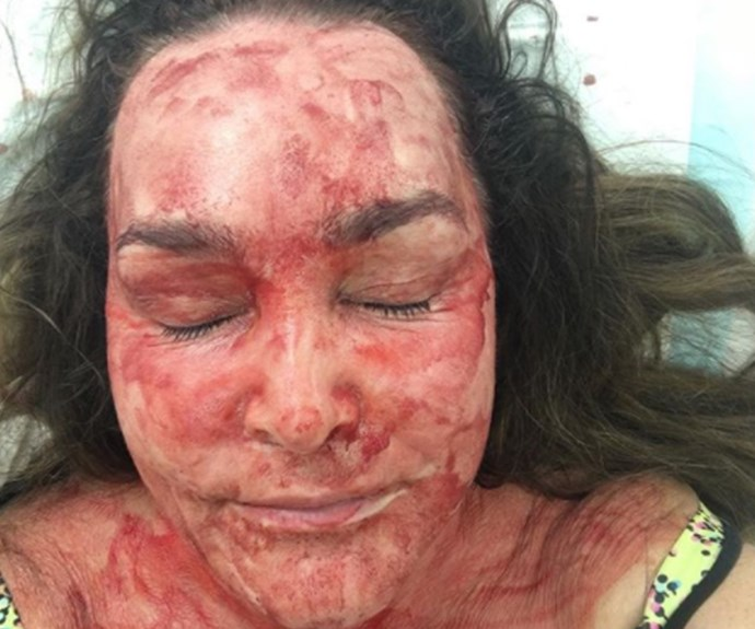 "Radio host and comedian Kate Langbroek has followed in [Kim Kardashian West](http://www.nowtolove.com.au/tags/Kim-Kardashian-West|target=""_blank"")'s footsteps by undergoing a vampire facial (AKA having your own blood injected into your face in a bid to help with a range of skin conditions). Her co-host [Dave Hughes'](http://www.nowtolove.com.au/celebrity/celeb-news/dave-hughes-exclusive-chat-with-ntl-37685
