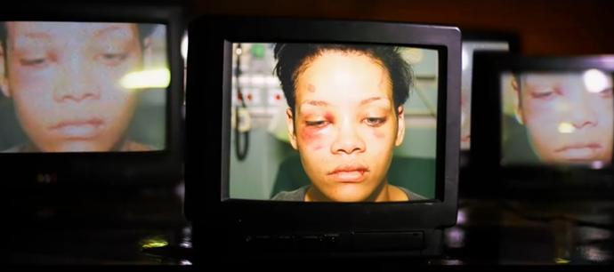 Shocking injury pictures of Rihanna.