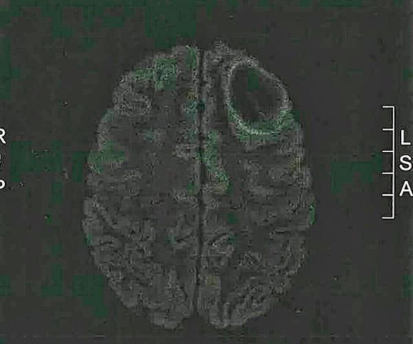A scan of Kayla's brain showing the large tumour.