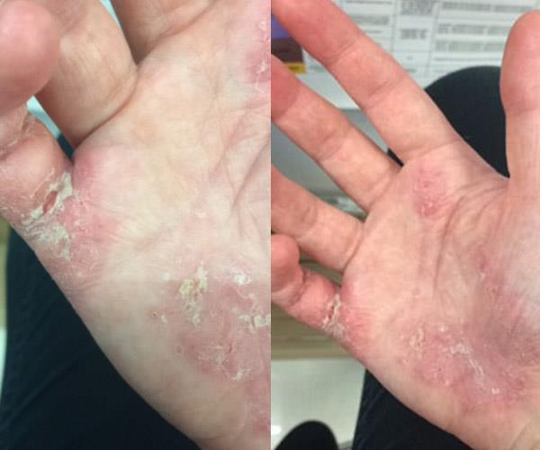 Nicole O'Dwyer was told by a dermatologist that she might have to give up her career because of her eczema.