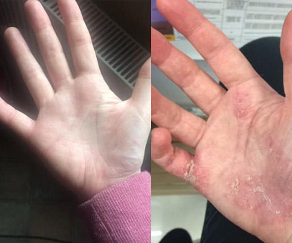 Nicole's hand before and after using the Childs Farm cream.