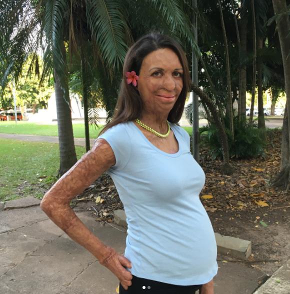 Turia showing off her bump in Darwin.