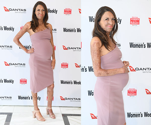 Turia Pitt gives birth to first son
