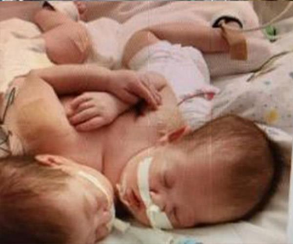 At Just 7-weeks-old conjoined twins Journee and Miracle were operated on to be separated.