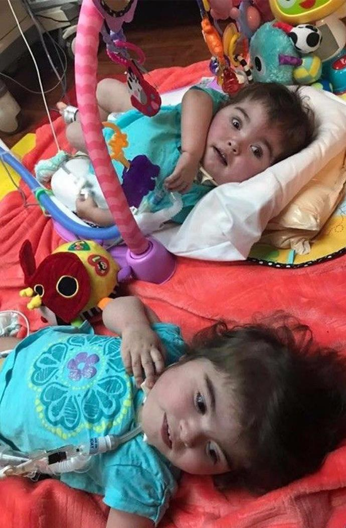 The little girls beat all the odds and have just celebrated their second birth, but sadly, the family is struggling to cope with the endless medical costs.