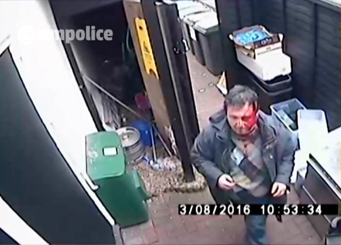 Ahmet after the attack.  Credit: HotSpot Media