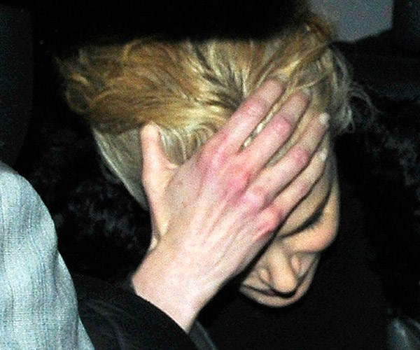 Nicole was snapped leaving trendy restaurant Zuma in London withe blotchy, eczema-covered hands.