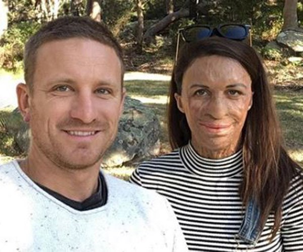 """Michael posted this picture on the 6th anniversary of the bushfire with the caption: """"Six years ago you tried to steal our life together. F--k you fire!!!! Grateful for the tenacity of the human spirit, we are happy and loving life."""""""