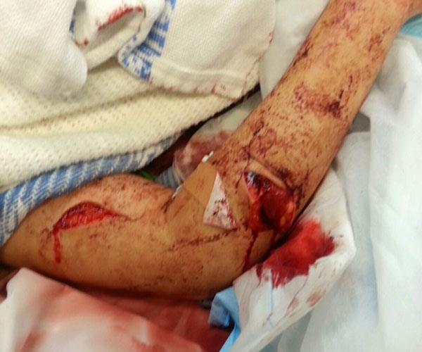 Alexis' right arm had been badly slashed.