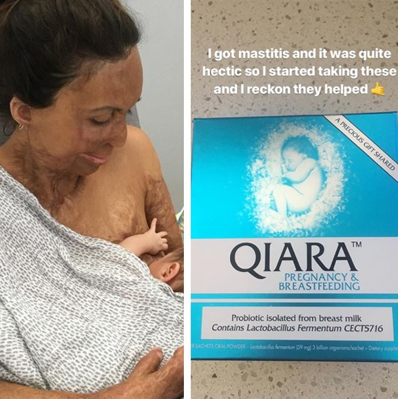 """Inspirational burns survivor Turia Pitt is experiencing all the joys and trying times of motherhood for the first time and sharing her tips along the way. Taking to her Instagram stories, the new-mum explained that [Qiara Pregnancy and Breastfeeding](https://www.qiara.com.au/qiara-pregnancy-and-breast-feeding