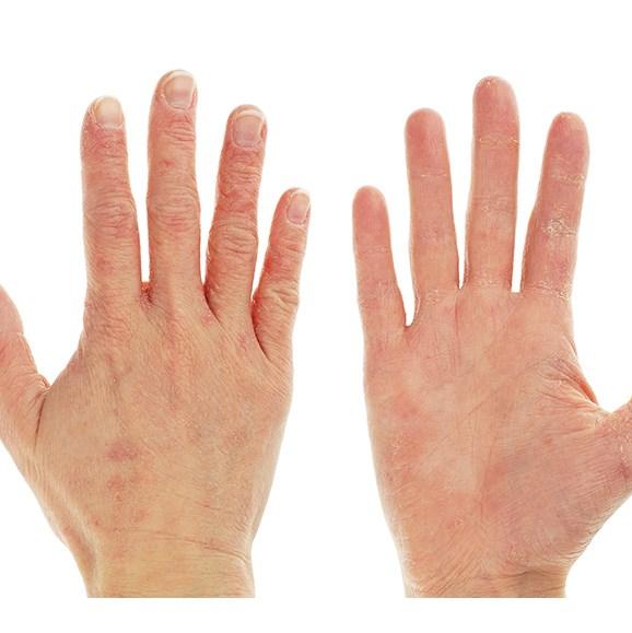 Eczema rash on hands.