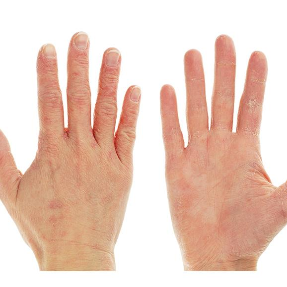 Eczema rash on hands.