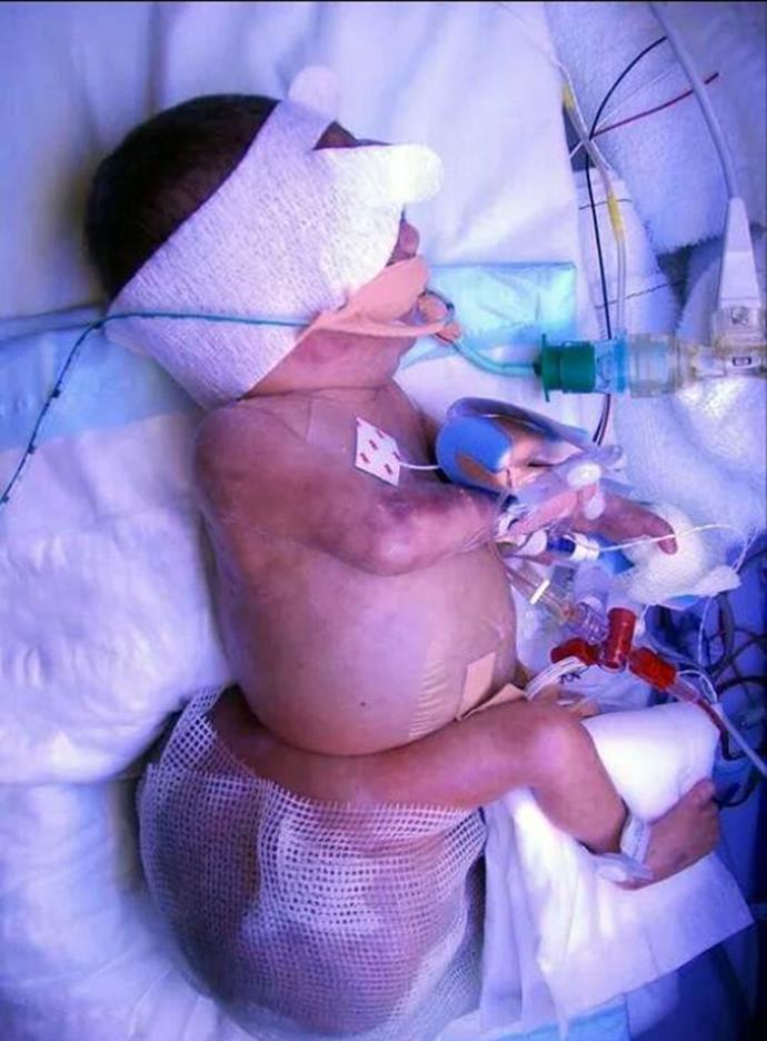 Aleyathiah with tailbone tumour