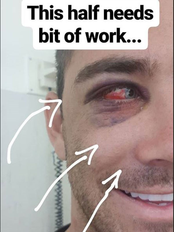 Cam Cranley posted this picture of his bloodied eye on his Instagram story. Source Instagram.