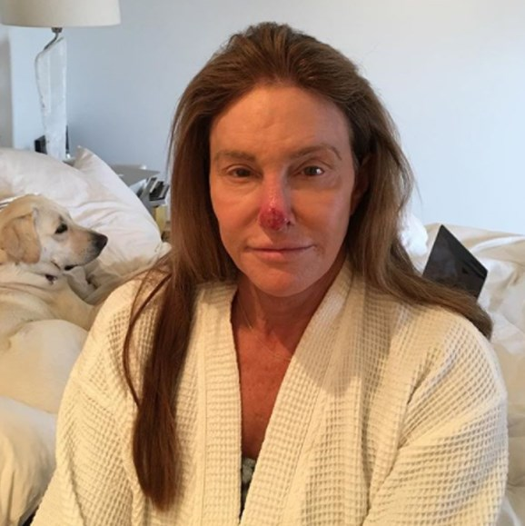"""Caitlyn Jenner's latest shocking selfie is a warning to all to slip, slop, slap every single day *even* when wearing makeup. """"I recently had to get some sun damage removed from my nose. PSA- always wear your sunblock!"""" she captioned the picture of herself on Instagram, which showed a sore, red mass at the end of her nose.  This isn't the Californian's first skin cancer scare, the 67-year-old has been diagnosed with cancerous tissue twice before, undergoing surgery on her cheek in 2012, and on her nose in 2013."""