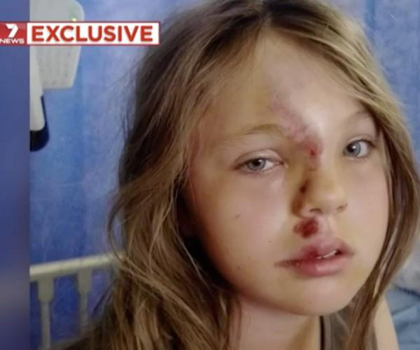 Alannah Davey, 10, was walking to a park just 20 metres from her home in Mount Barker when she was hit by a car. (Image via *7 News*).