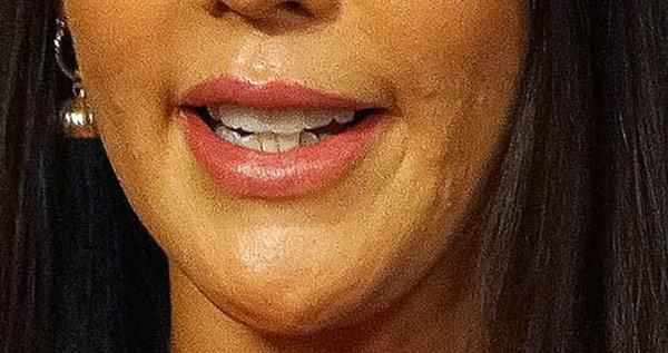 Lip fillers gave her an inflated 
