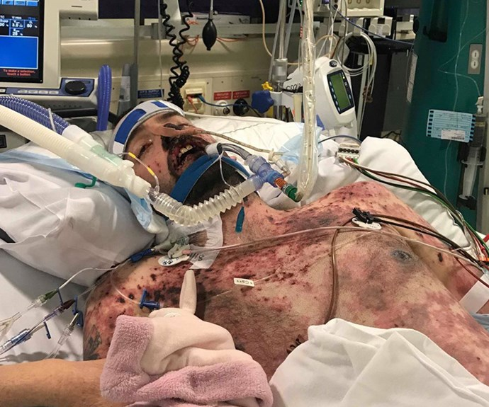 During a 5-minute trip in the ambulance, the 28-year-old's body became covered in a purple rash.