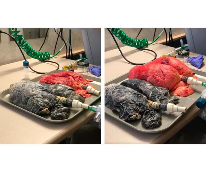 Left: The cancerous lungs are inflated to full capacity. Right: The healthy lungs are inflated. *Image Facebook/Amanda Eller*