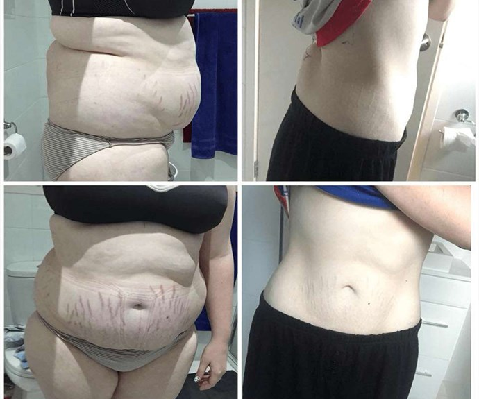 """Nikita has lost an impressive 39kg with [The Healthy Mummy](https://www.healthymummy.com/