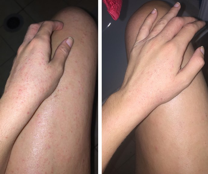 Before and after Madison found a way to manage her inflamed skin.