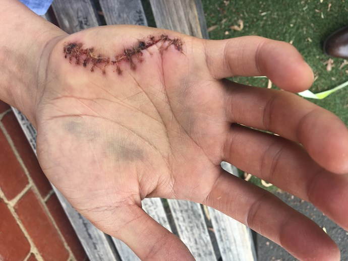 Brendan needed 13 stitches after sustaining an injury' in the *MasterChef Australia* kitchen.