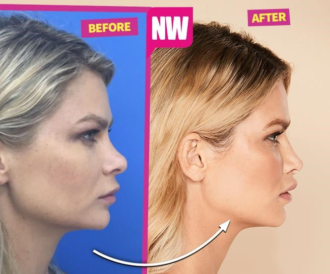 Megan shared her rhinoplasty and lip lift results with *NW* magazine.