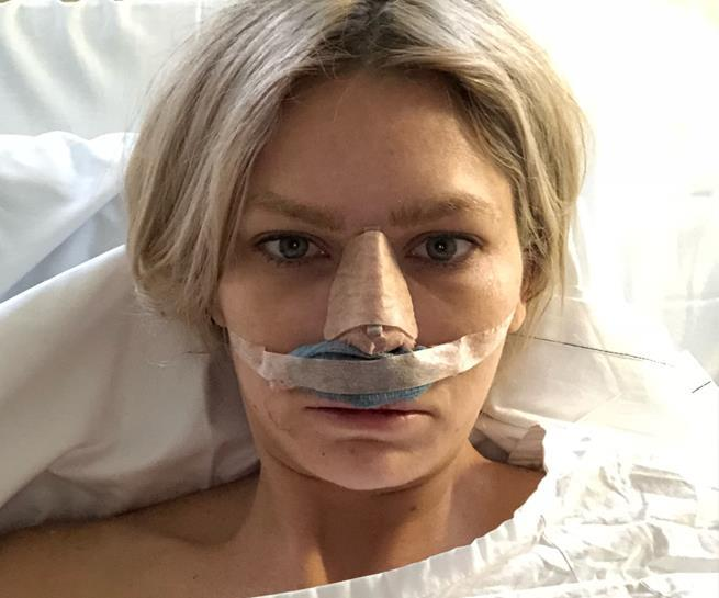 The *BIP* star after her rhinoplasty with Sydney based surgeon Dr Zacharia.