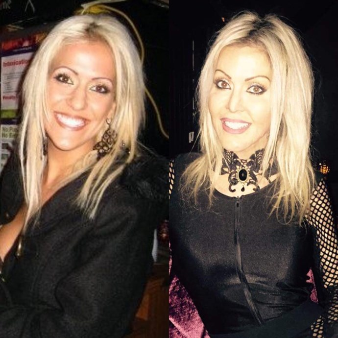 Dana before and after her attack.